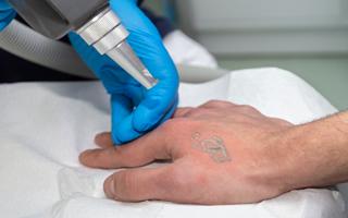 rimozione tatuaggi Napoli
